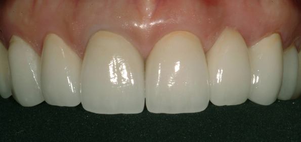 Best dental crowns Medellin