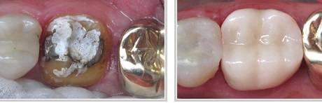 Dental Crown Medellin