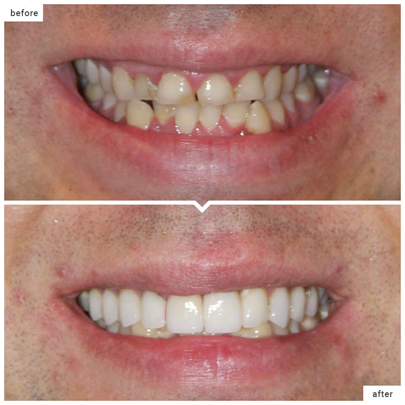 Dental crowns cost and advantages Medellin Colombia