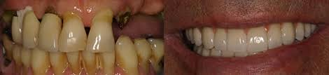 dental bridge pictures before after